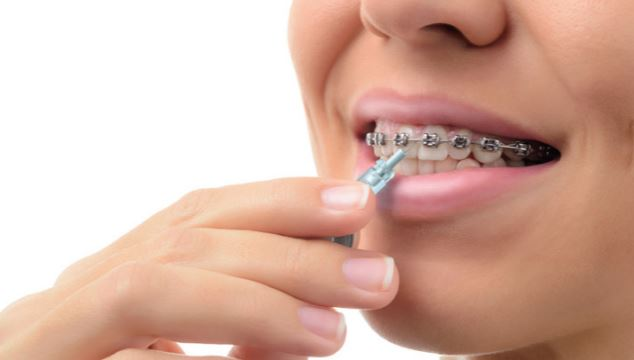 The Importance Of Wearing A Retainer After Orthodontic Treatment